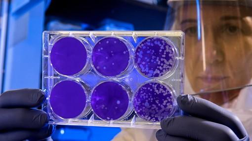 Coronavirus, un morto e 170 nuovi casi positivi in Piemonte