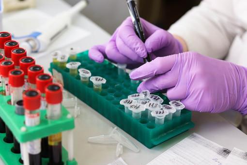 Coronavirus, autorizzati i test sierologici per i piemontesi presso i laboratori privati